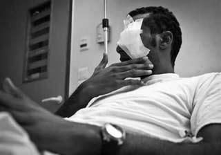 Ο νεαρός Ελληνο-αιγύπτιος που δέχθηκε επίθεση με αλυσίδες από ομάδα ακροδεξιών, χάνοντας το μάτι του (φωτ. Ύπατη Αρμοστεία του ΟΗΕ για τους Πρόσφυγες)