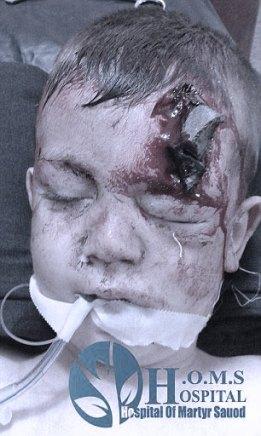 O μικρός Fadi  θύμα των ρωσικών βομβαρδισμών στη Συρία